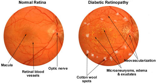 Diabetic Eye Disease -  Diabetic retinopathy is the most common diabetic eye disease and a leading cause of blindness in American adults. It is caused by changes in the blood vessels of the retina.In some people with diabetic retinopathy, blood vessels may swell and leak fluid. In other people, abnormal new blood vessels grow on the surface of the retina. The retina is the light-sensitive tissue at the back of the eye. A healthy retina is necessary for good vision.If you have diabetic retinopathy, at first you may not notice changes to your vision. But over time, diabetic retinopathy can get worse and cause vision loss. Diabetic retinopathy usually affects both eyes.