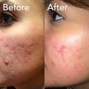 microneedling-acne-treatment-example-herb-and-ohm