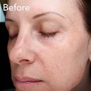 microneedling-face-treatment-before-example-herb-and-ohm