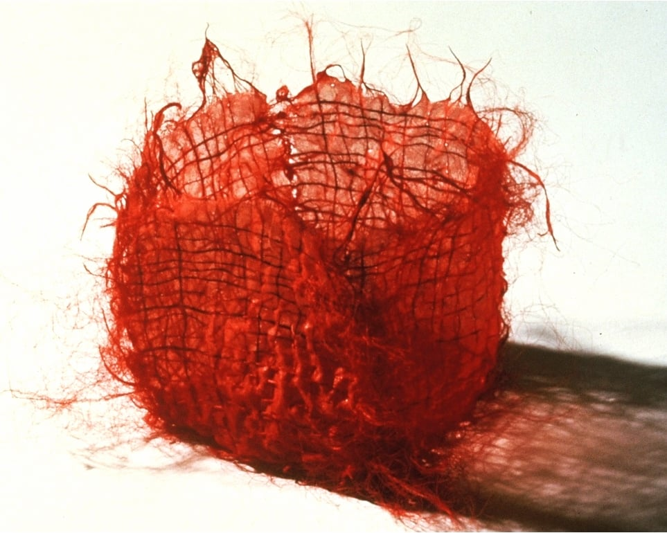 Red Stitched Box, 1986