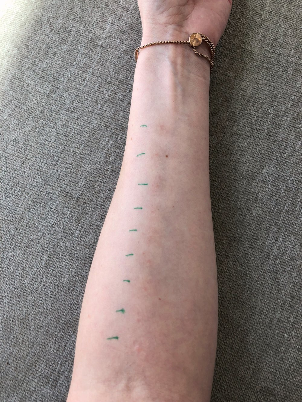 Allergy testing in a patient