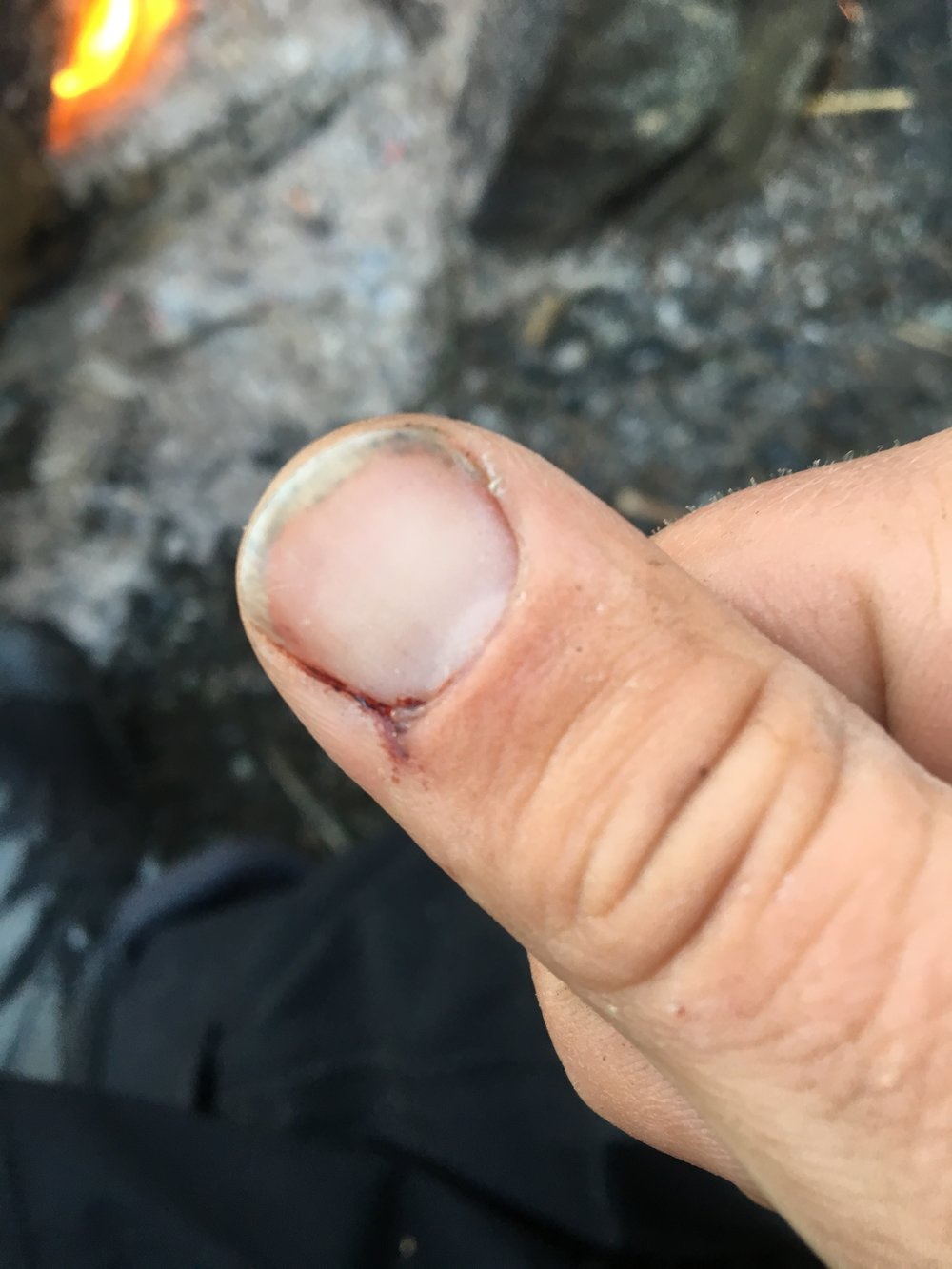 The result of getting a hook stuck in my thumb, again.