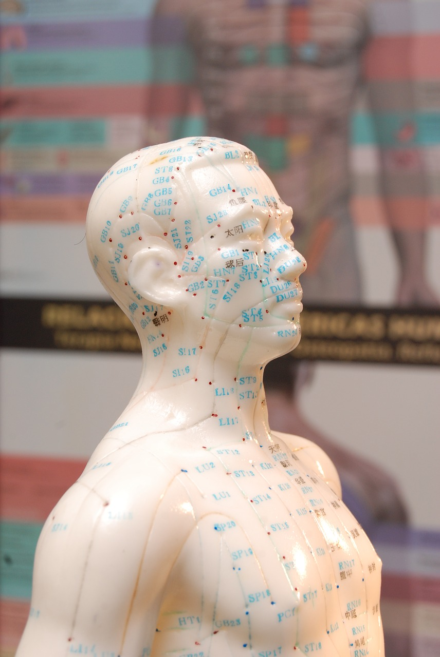 Acupuncture for Cervicogenic Headaches