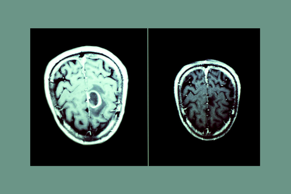 My father's MRI scans, (left) showing the tumour  in June 2012,  (seen as a darker object in the centre right of the brain), and (right) a more recent scan from December 2016, demonstrating that the tumour has not re-occurred since surgery.