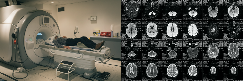 "MRI and CT scans are the most commonly used method of detecting tumours in the brain. MRIs use magnetic fields and radio waves. Visual ""slices"" are processed by computers to create detailed, three-dimensional pictures of the brain, (Peter's can be seen in the right of the image)."