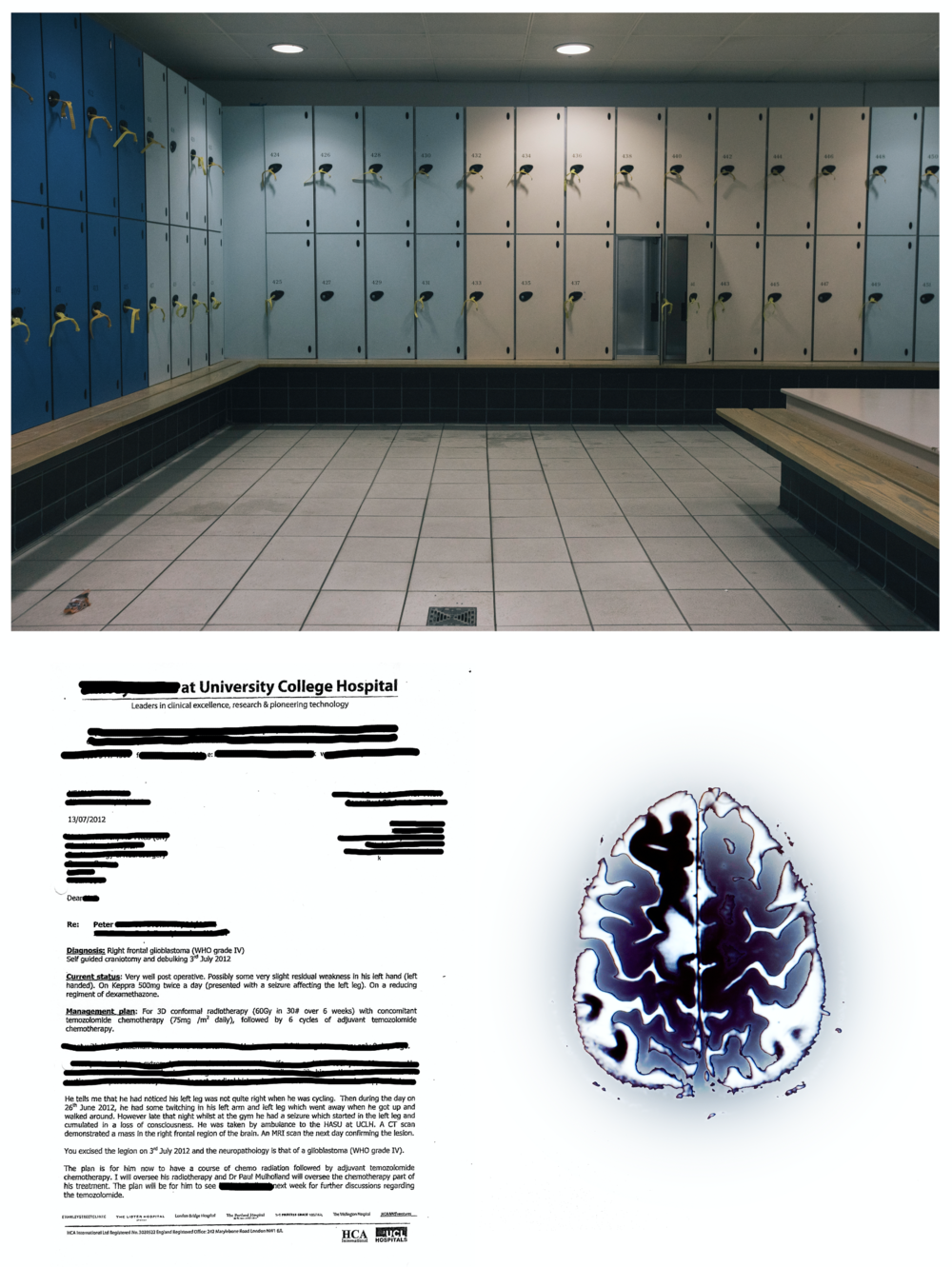 "When re-calling the seizure in the swimming pool changing room, Peter said he felt as if he was ""going to die"". The document (bottom left) describes the incident, and contains his medical diagnosis, and (bottom right) Peter's brain scan."