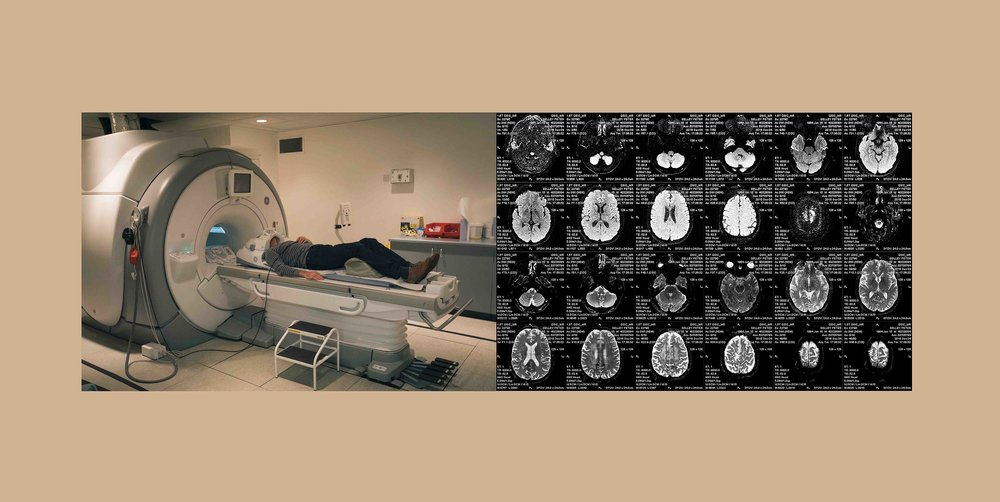 MRI machine & scans.jpg