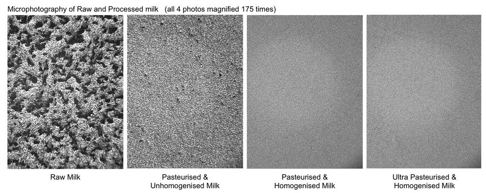 Microphotography of Raw & Processed Milk magnified 175 times