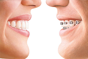 Adult Braces   One of every five patients in orthodontic treatment is over 21. We offer traditional metal braces, clear braces as well as Invisalign invisible braces.  Learn more about braces.