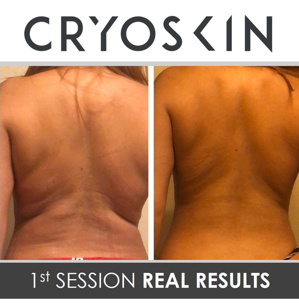 - CryoSlimming -  $350This 28 minute treatment consists of a 3 phase thermal shock that will help naturally destroy fat cells. Whether you're looking to lose fat on your stomach, thighs, arms or back this is the solution for you.MARCH MADNESS  (must purchase by 3/31)5-Sessions CryoSlimming or CryoToning $1000    ($750 Savings)5 CryoFacials $600   ($150 Savings)10 CryoFacials $1000 ($500 Savings)Brazilian Butt Lift (2 sessions) $400Refer 5 friends who each purchase a session = a free session for youRefer 5 friends who each purchase a package = a free package for you