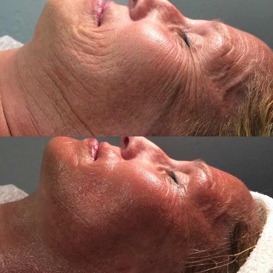 - CryoToning - Body $250 Face Lift $150- If you're looking to remove cellulite or slow down the aging process this is the treatment for you. This 20 minute cold therapy treatment will help improve your micro-circulation and speed up your metabolism, which results in higher collagen production.
