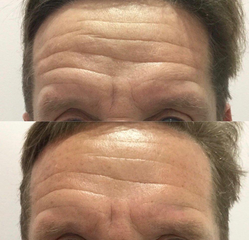 pelleve-forehead-6-momths