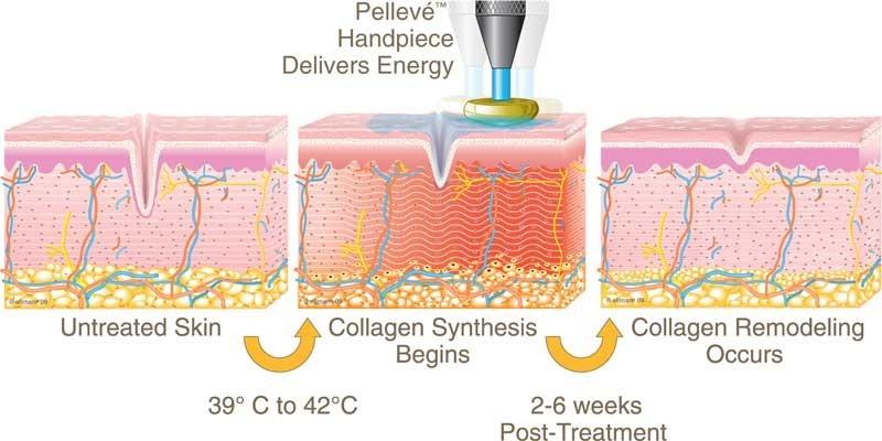 Pelleve-Diagram.jpg
