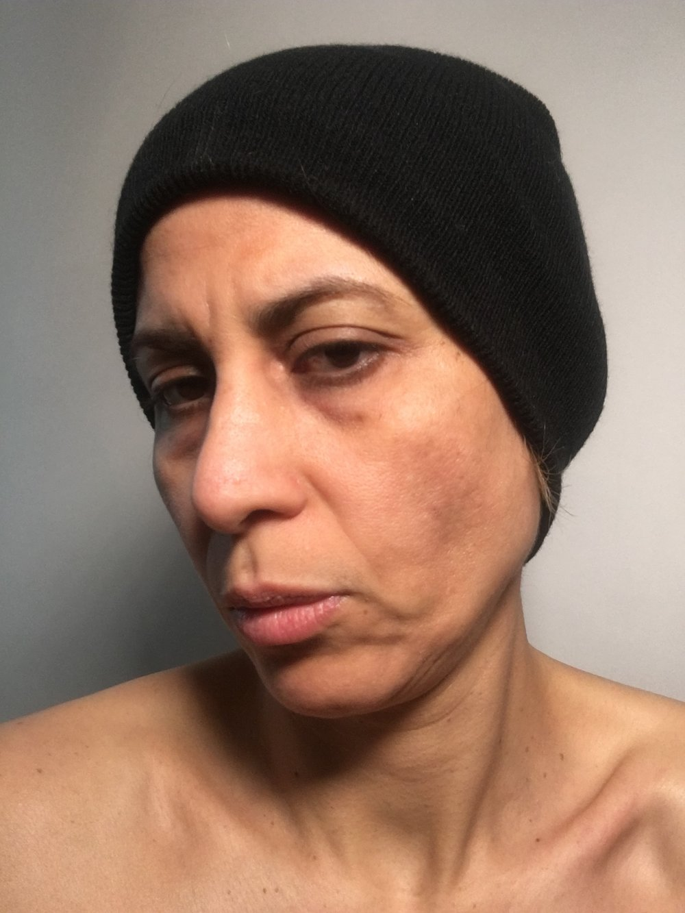 "Me, after my diagnosis, when my problem started to change my appearance. At some point, I had ""holes"" of missing hair on top of my head. My skin started to show age spots and become saggy. I never showed up anywhere without makeup and a hat or wig."