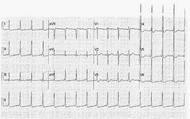 EKG Challenge #4 Case Conclusion: In Syncope, You Can't Miss