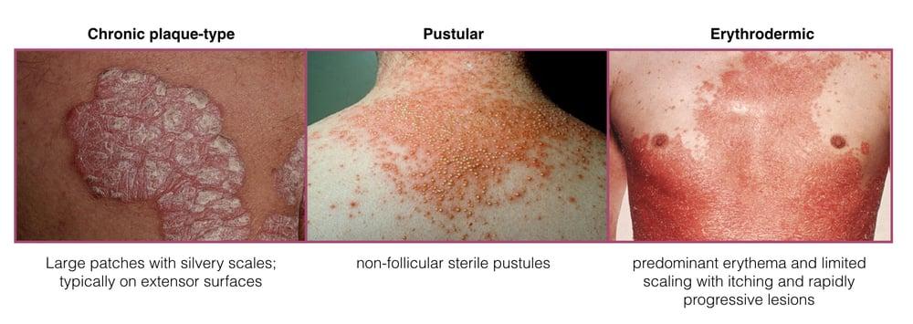 group b strep rash in adults