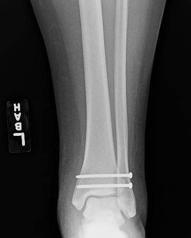 Image gallery maisonneuve fracture for Maison neuve