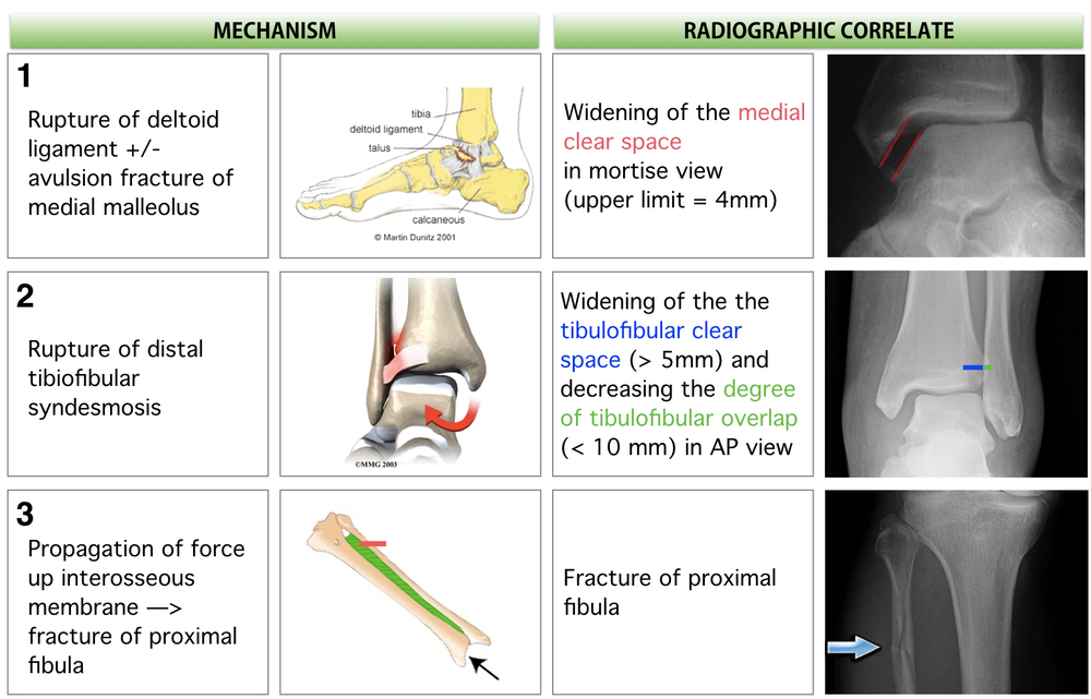 Sequential mechanism of Maissoneuve Fracture & Radiologic Correlates
