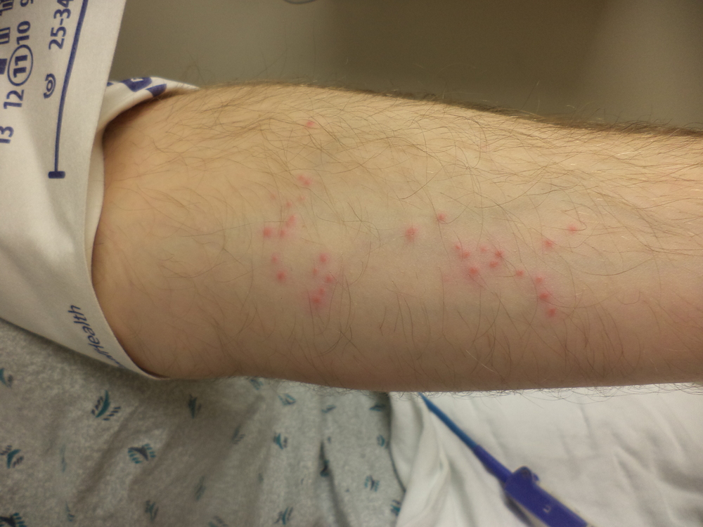 Itch forearm rash pictures