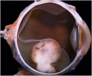 Image source:   http://www.mrcophth.com/pathology/choroidalmelanoma/melanoma.html