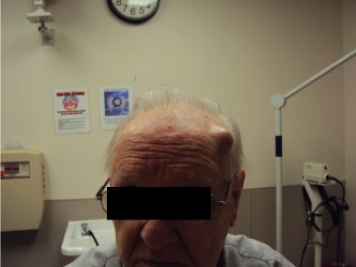 A 73 y.o. male came in from his doctor's office saying he needs his abscess drained.