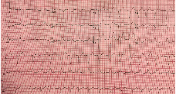 Repeat EKG #1, after treatment for hyperkalemia