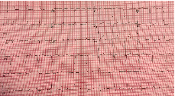 Repeat EKG #2, after treatment for hyperkalemia
