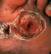 leprosy with neuropathic ulcers