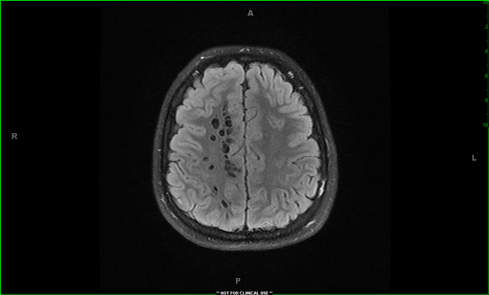 What is the finding on this CT?