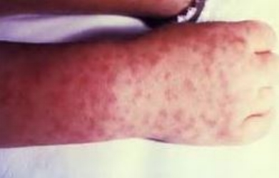 rocky mountain spotted fever rash.