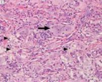 foamy macrophages and fibrosis seen on biopsy