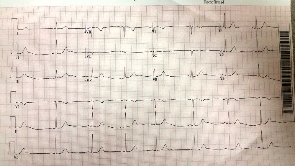 EKG_20171006.jpg