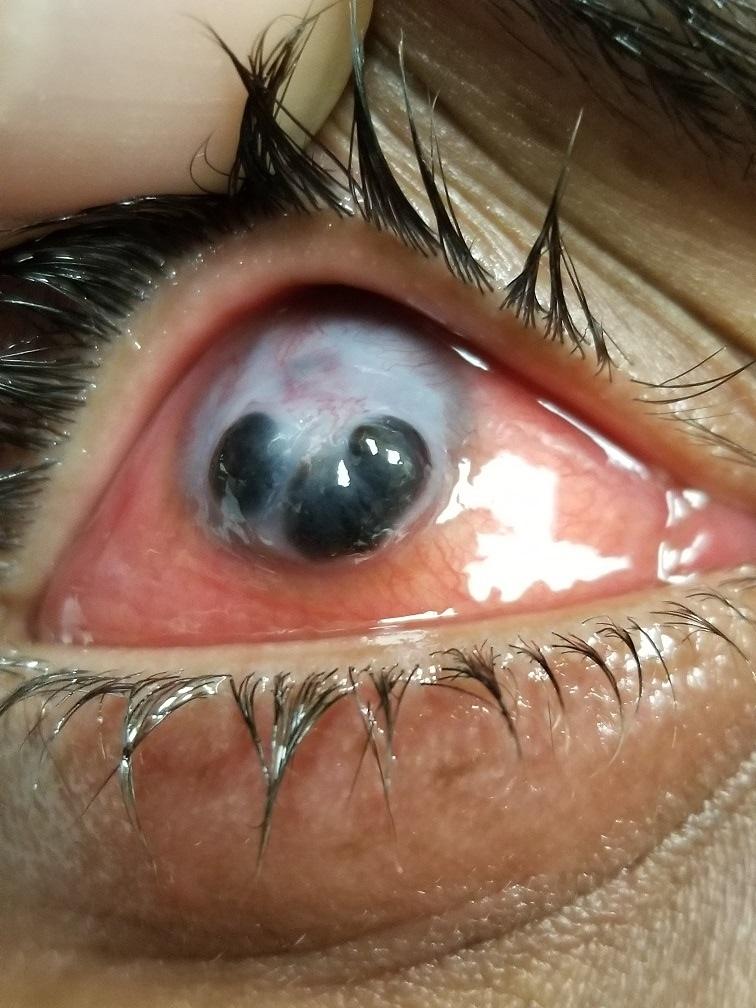 meth eyef.jpg