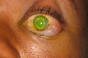 the eye exam after a corneal transplant.