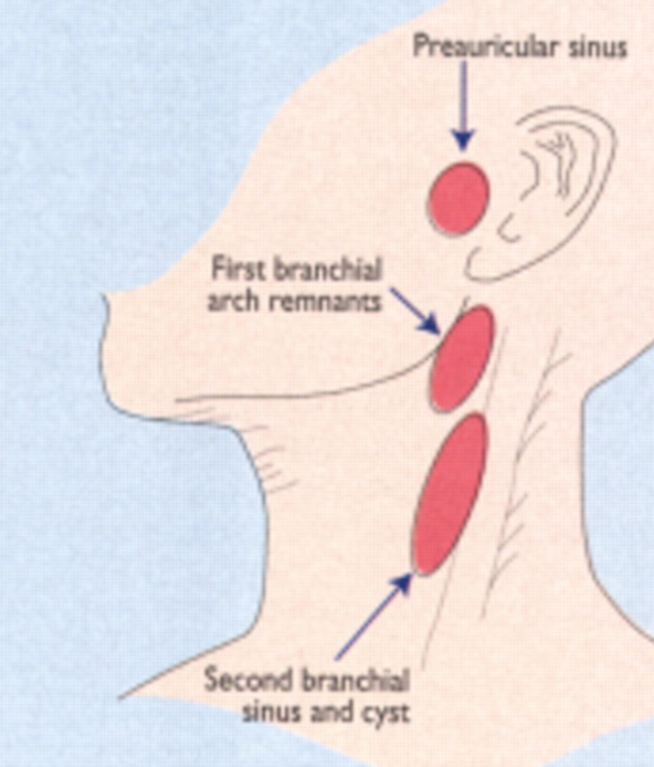 common sites for branchial cleft cysts