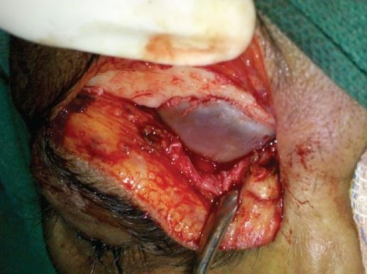 open approach for mucocele removal