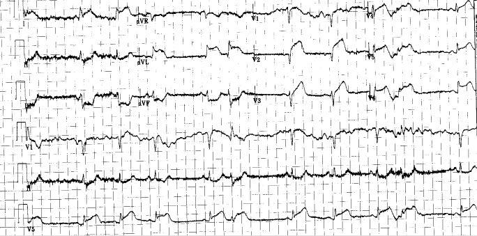 The EKG in the ED appears below