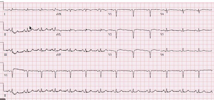 What could account for the difference in the two EKGs?