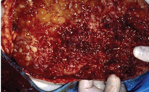 peritoneal pseudomyxoma