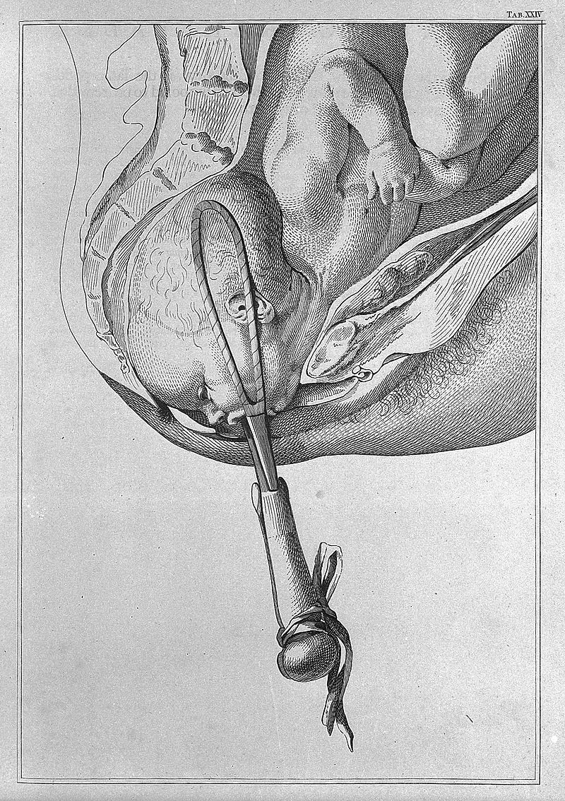 Forceps_delivery._Wellcome_L0005447.jpg