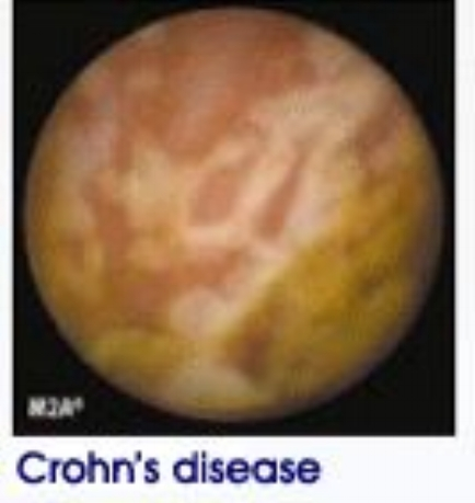 1-4% of crohn's patients retain the endoscopy capsule