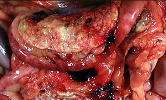 inflamed pancreas above the duodenum