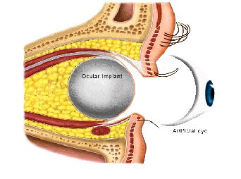 eye implantdia.JPG