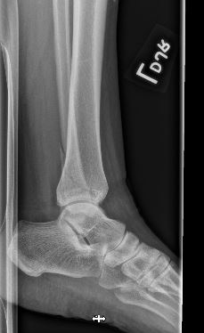 spiral fibular fx seen on lateral view