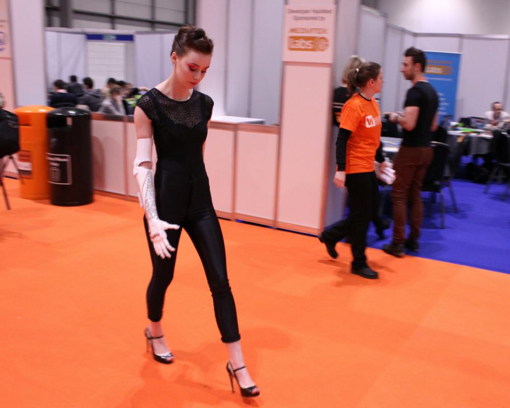 Grace Mandeville wearing bionic hand