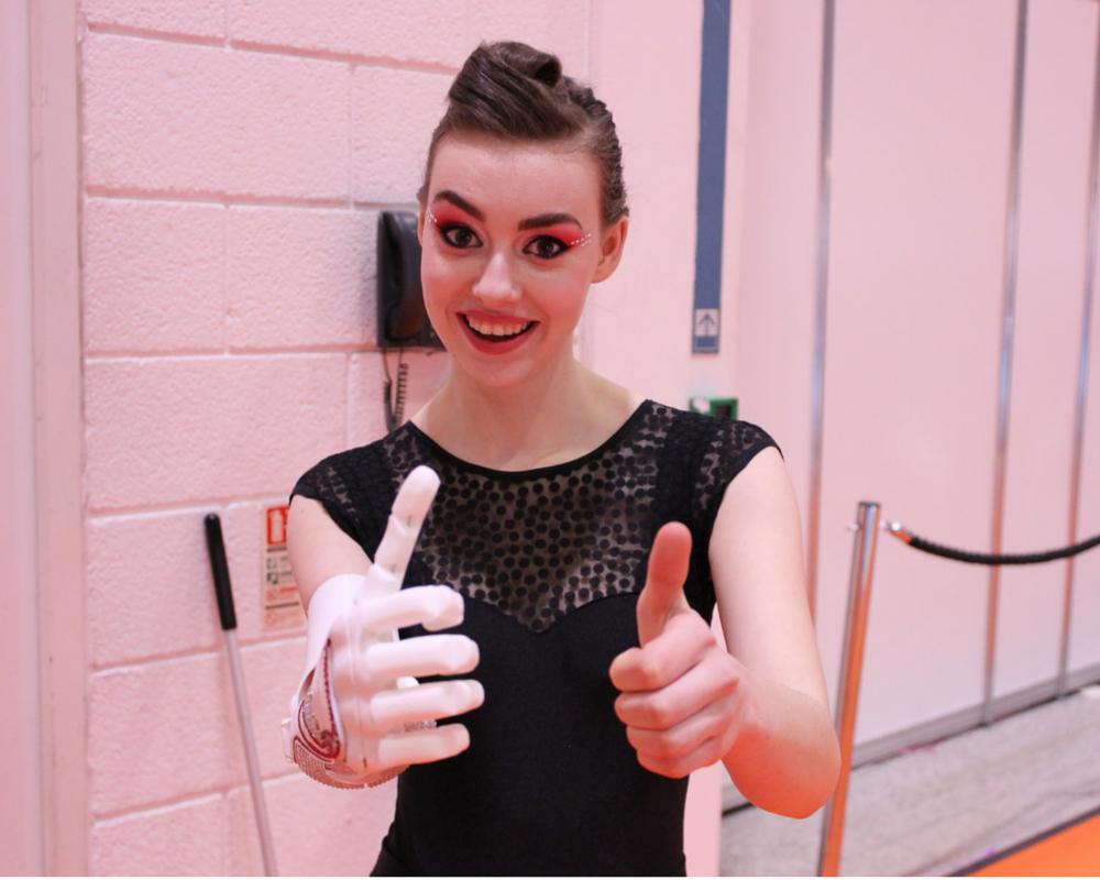 Grace Mandeville giving thumbs up with open bionics robotic hand