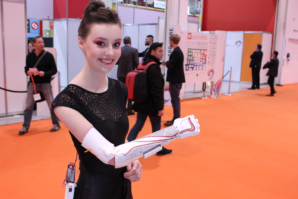 Grace Mandeville Open Bionics Arm