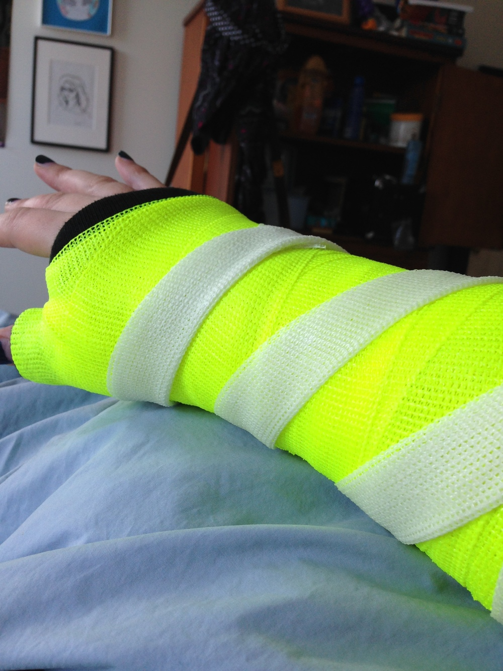 I decided on a neon yellow cast with a glow in the dark stripe.