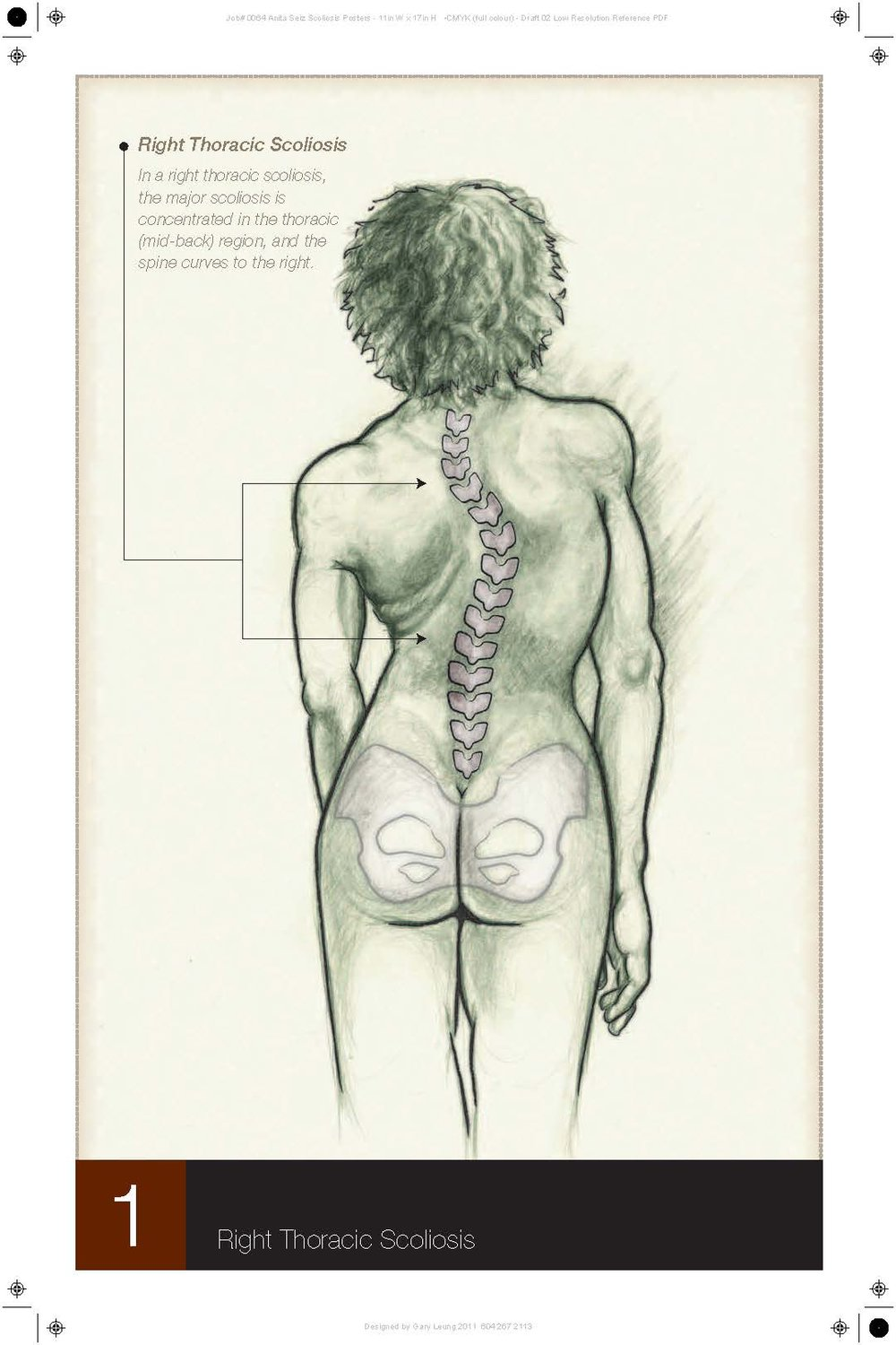 Scoliosis Curve - Thoracic Spine.jpg