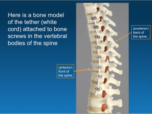 Example of Vertebral Body Tethering (VBT)
